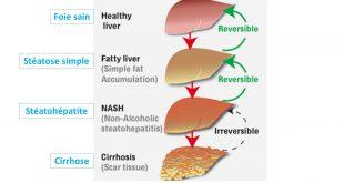 NASH : la «maladie du foie gras», nouveau marché pharmaceutique